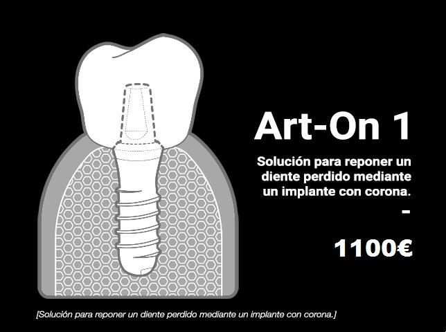 implante unitario ArtOn