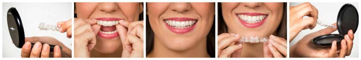 Ortodoncia invisible. Ideal boda