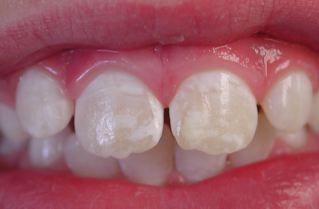 gluten y dientes