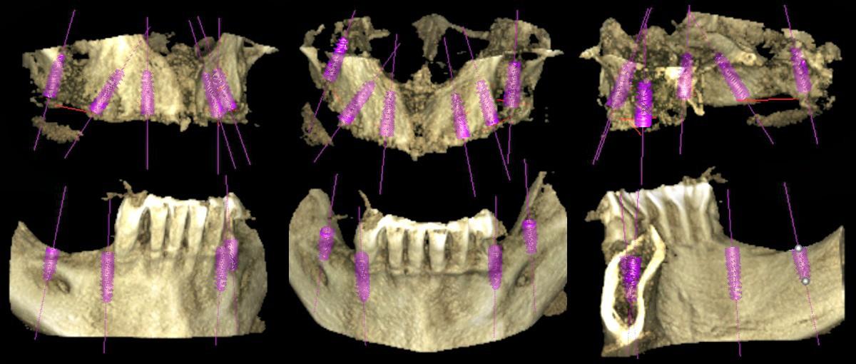 imágenes de un Escaner 3D para colocar implantes dentales