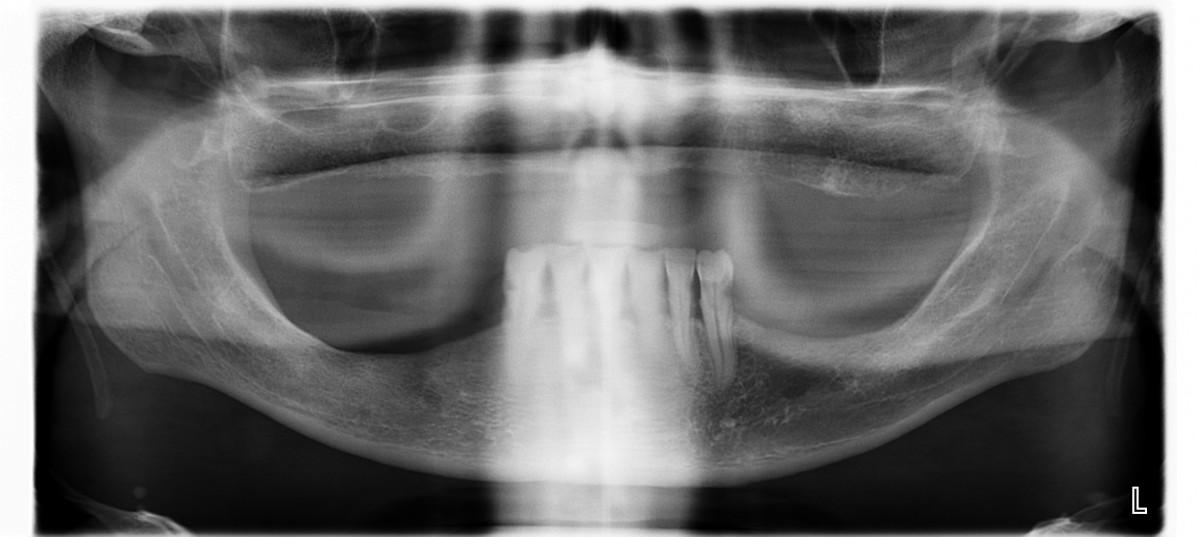 ortopantomografía para los pasos previos a colocar un implante