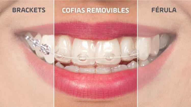 cofias removibles. Tipos de ortodoncia en Tenerife