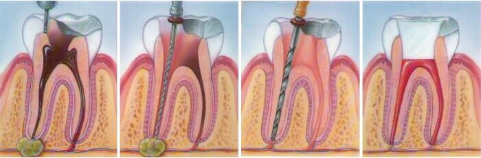 pasos para una endodoncia