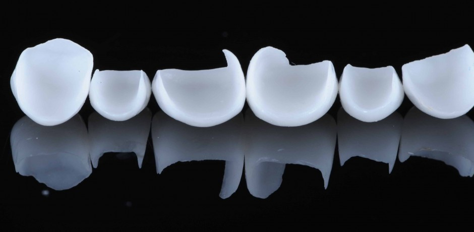 Carillas-dentales.jpg