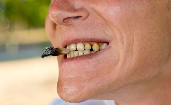 implantes en fumadores