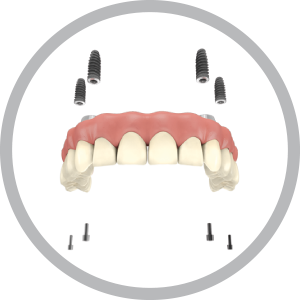 https://www.artedentalclinic.com/wp-content/uploads/2016/10/one-day-implants-1.png