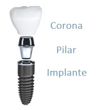 implante dental,pilar,corona