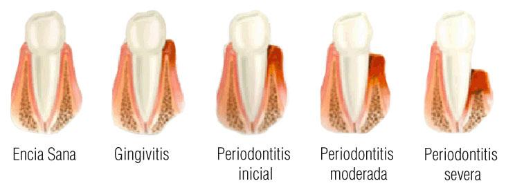 vacuna contra la periodontitis