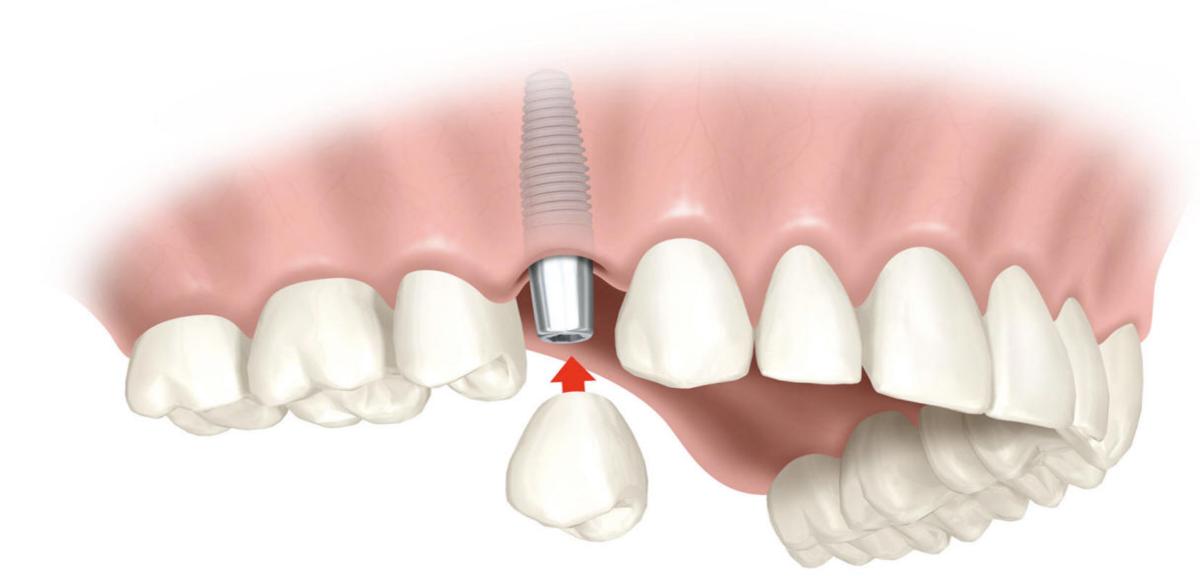 servicio-implantes-dentales-2-1200x576.png