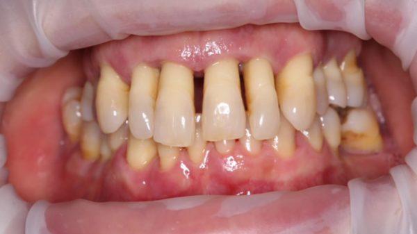 periodontitis, encías retraídas