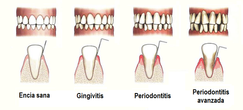 Fases-periodontitis.png