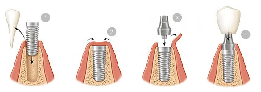 colocacion-implantes-dentales-e1498252132485.jpg