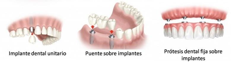 implante unitario en Tenerife