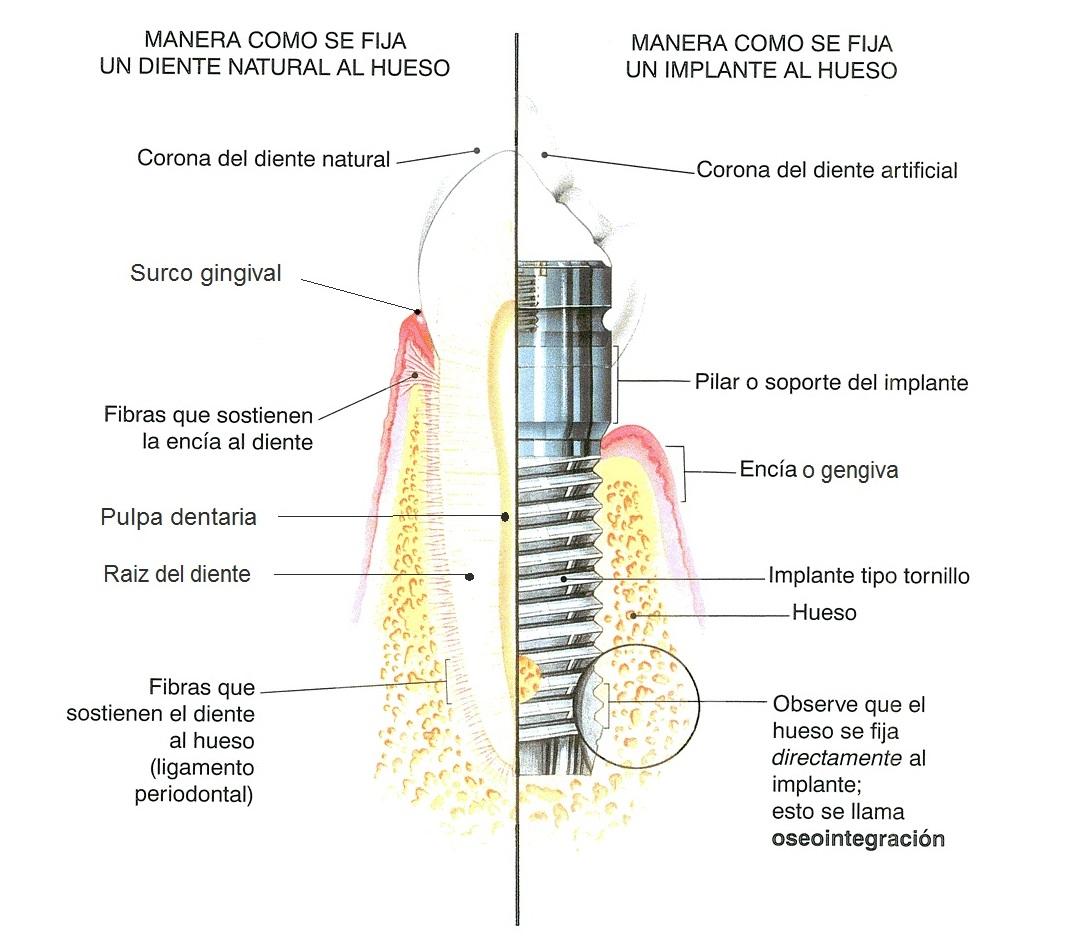 osteointegración de implantes dentales