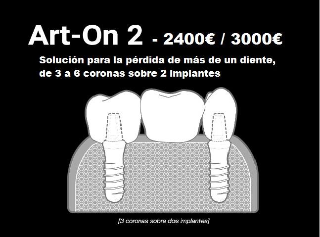 https://www.artedentalclinic.com/wp-content/uploads/2017/06/puente.jpg