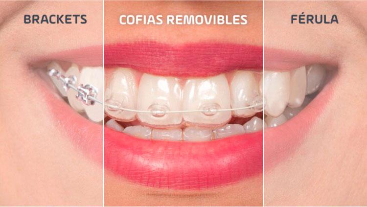 Geniova, ortodoncia invisible y rápida