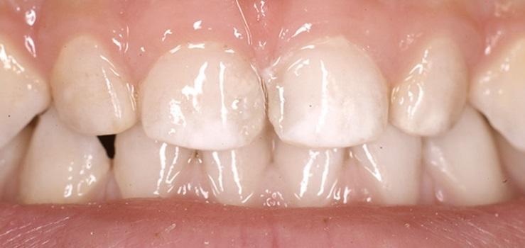 manchas-blancas-en-los-dientes.jpg
