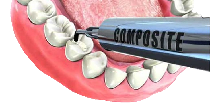 empaste dental con composite en Tenerife