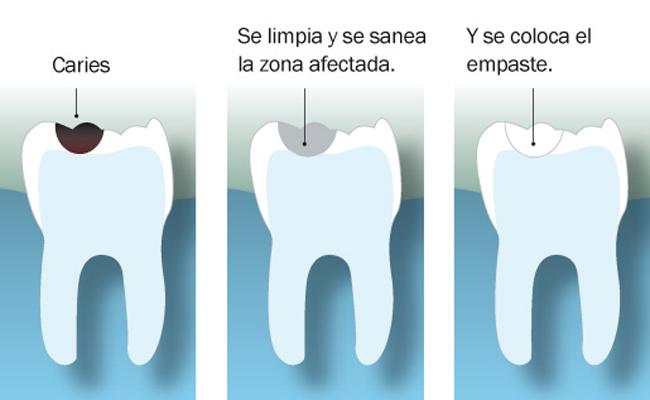 fases del empaste dental