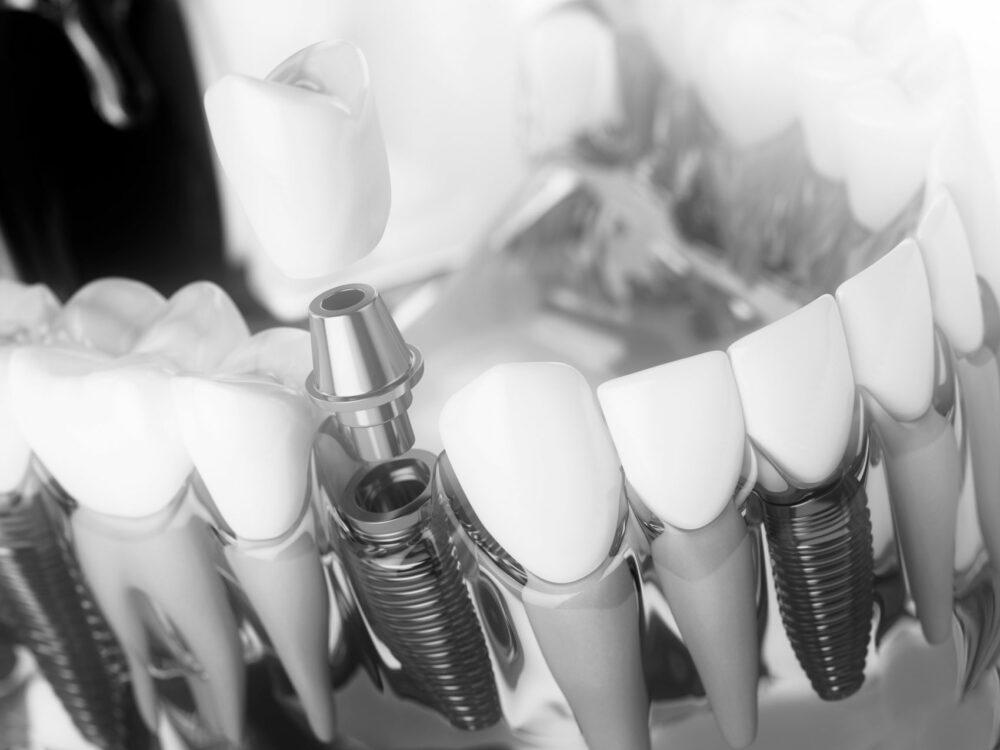 implantes dentales puerto de la cruz Tenerife. dental implants Puerto de la Cruz Zahnimplantate