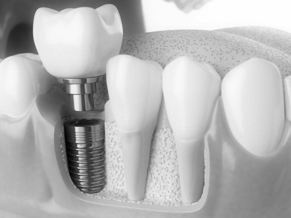 implantes inmediatos. inmediate, ,Zahnchirurgie, dental surgery