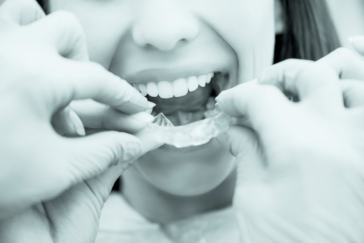 https://www.artedentalclinic.com/wp-content/uploads/2018/01/ortodoncia-invisible-tenerife-1200x801.jpg