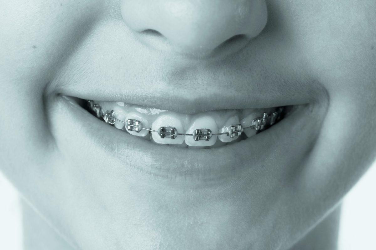 https://www.artedentalclinic.com/wp-content/uploads/2018/01/ortodoncia-tenerife-1200x800.jpg
