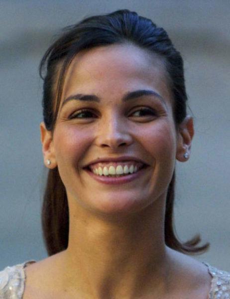 ejemplo de sonrisa gingival