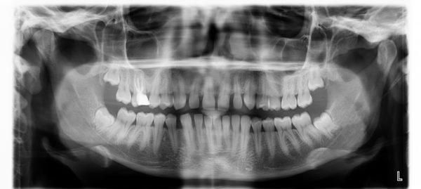 diente supernumerario