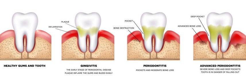 gum-disease-stages-862x393.jpg