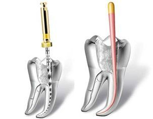 endodoncia duele