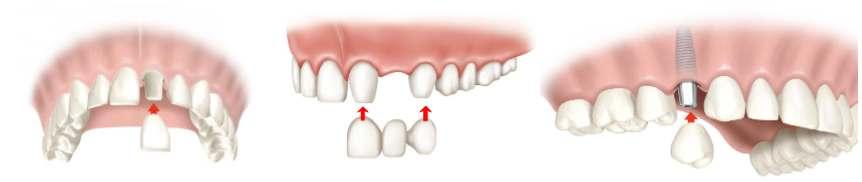 corona dental tenerife
