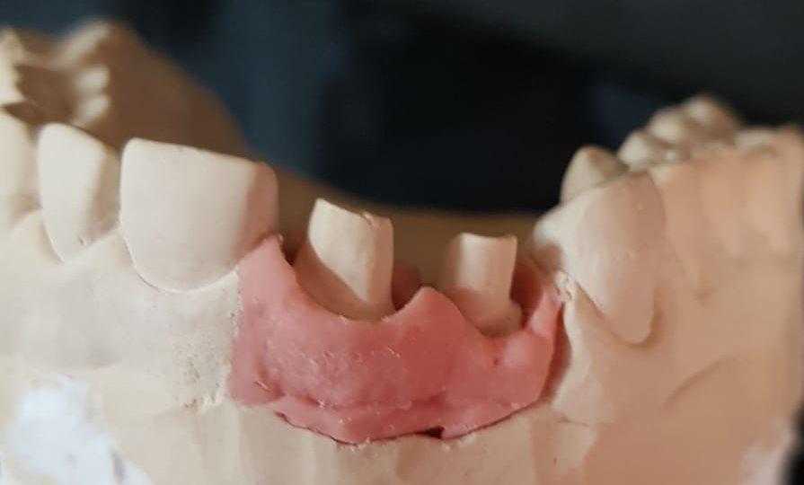 molde corona dental