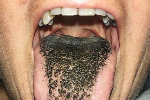 halitosis, lengua negra
