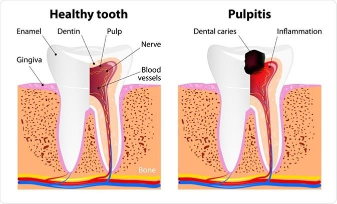 pulpitis dental tenerife